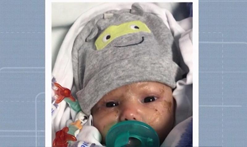 Ilhéus: Família de bebê com doença rara faz campanha para achar doador de medula